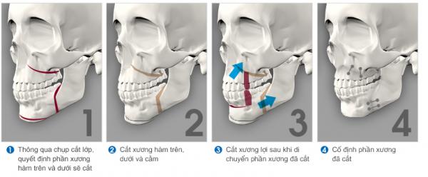 Cắt xương hàm chữa hô hiệu quả