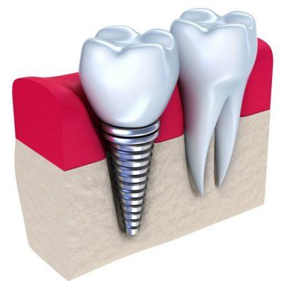 cay-ghep-implant-gia-bao-nhieu-tien-1
