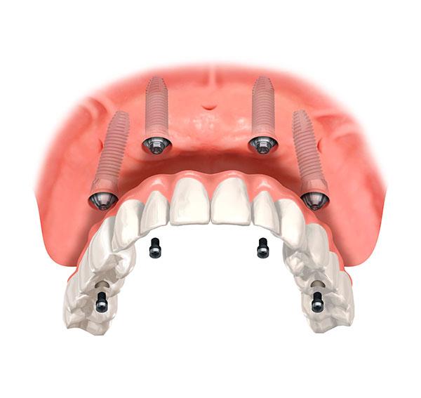 cay-ghep-implant-gia-bao-nhieu-tien-2