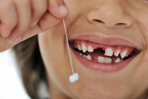 Hướng dẫn cách nhổ răng sữa cho bé tại nhà không đau