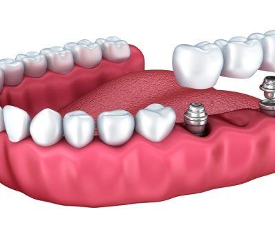 implant-rang-ham-1