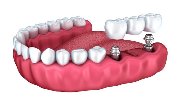 Implant răng hàm