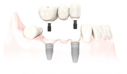 implant-rang-ham-2