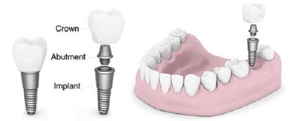 lam-rang-implant-1