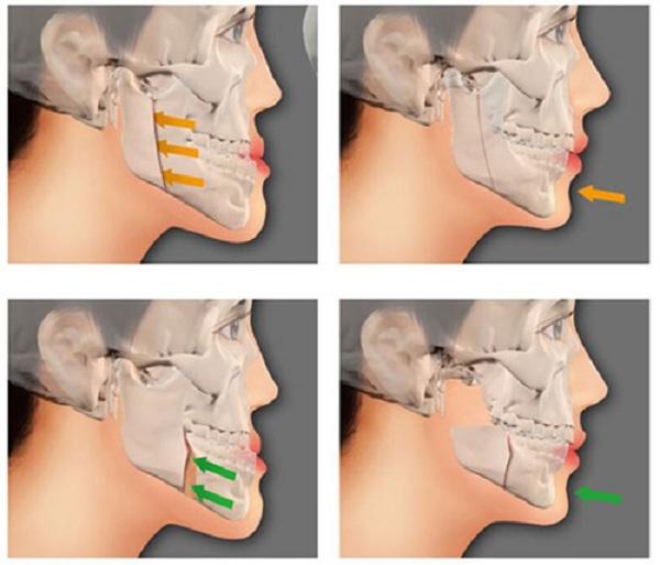 Những lưu ý về phẫu thuật hàm hô móm