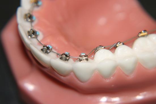 Niềng răng hàm dưới có hiệu quả không?