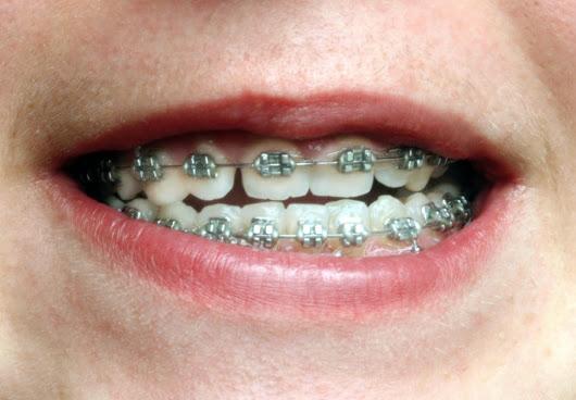 Niềng răng móm an toàn hiệu quả