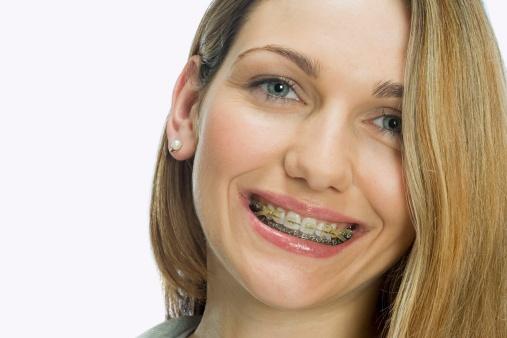 Niềng răng người lớn mất bao lâu?