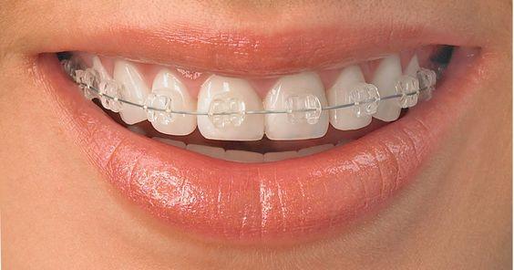 Niềng răng thẩm mỹ là gì?