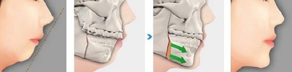 Phẫu thuật cắt xương hàm có đau không?