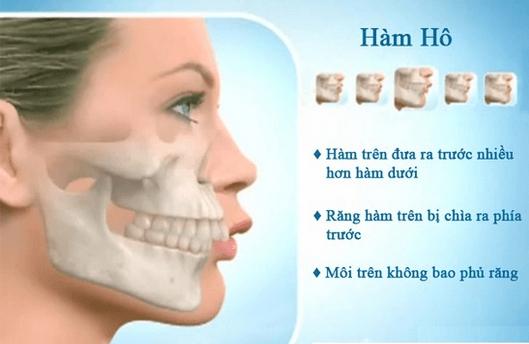 Phẫu thuật cắt xương hàm có nguy hiểm không?