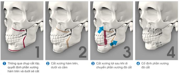 Phẫu thuật hàm hô móm an toàn và hiệu quả