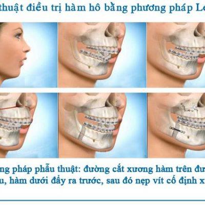 phuong-phap-phau-thuat-cat-xuong-ham-1