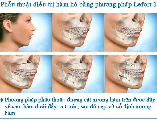 Phương pháp phẫu thuật cắt xương hàm