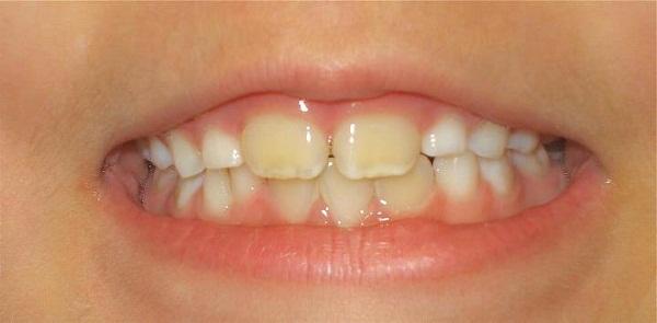 Răng trẻ bị vàng - Nguyên nhân và cách điều trị