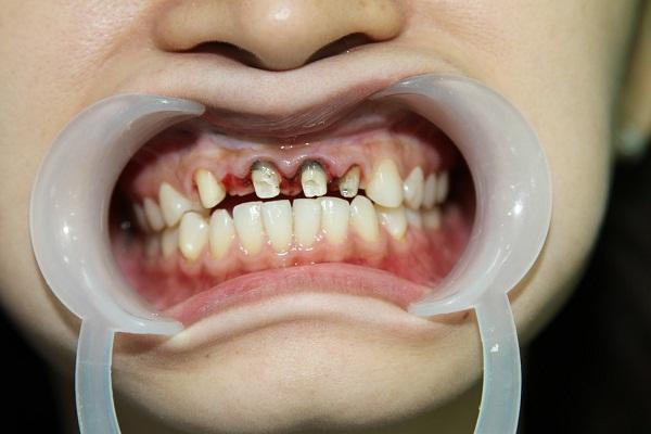 Trẻ em nên hay không nên trám răng?