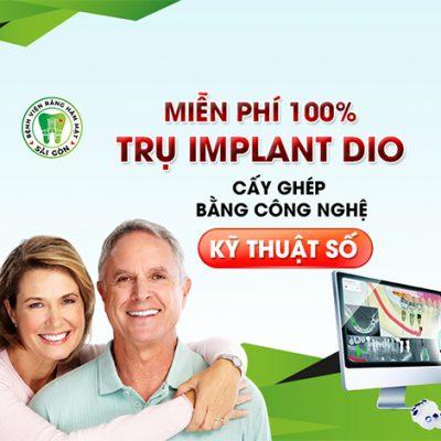 implant-digital