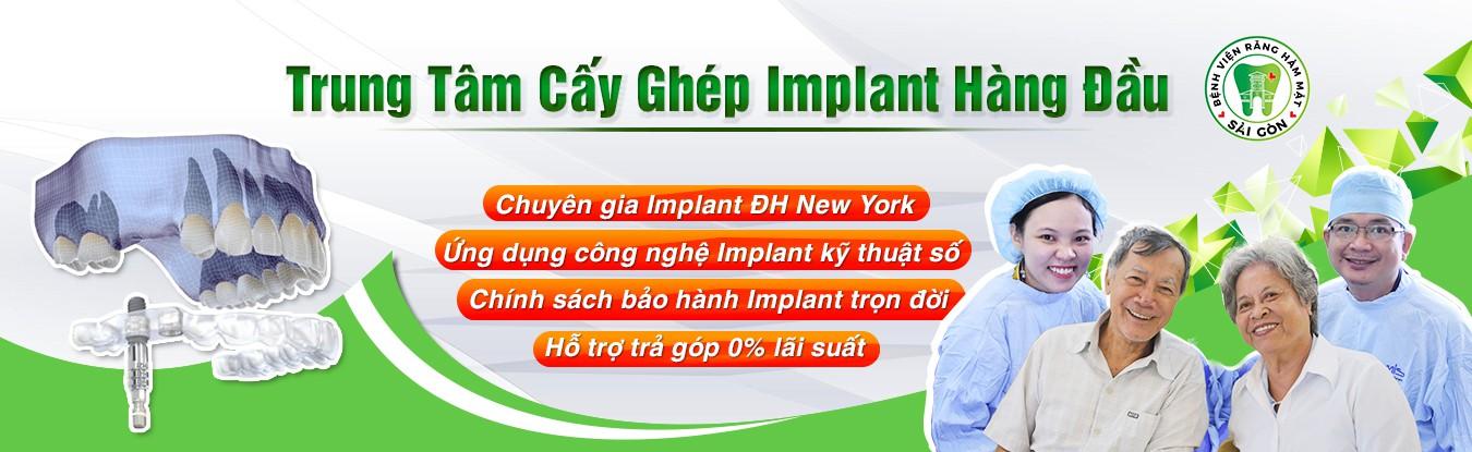 trung tâm cấy ghép implant uy tín tại tphcm