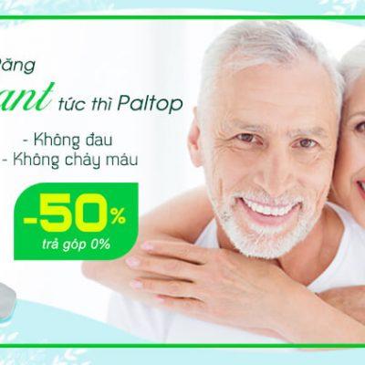 implant giảm 50%